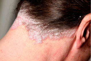 a fejbőr kezelése pikkelysömörből népi gyógymódokkal üröm keserű pikkelysömör kezelése