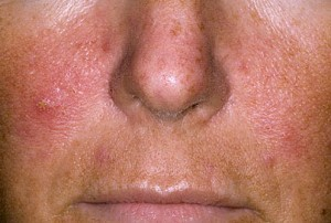 enyhíti a pikkelysömör súlyosbodását az arcon