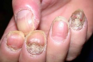 pikkelysömör tünetei a megjelenés okai népi gyógymódokkal)