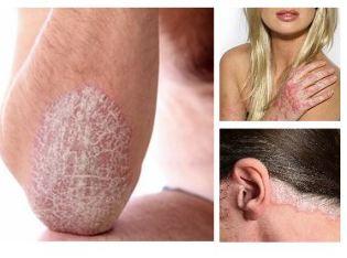 hogyan kezeljük a pikkelysömör kátránnyal az arcon vörös folt és viszketés